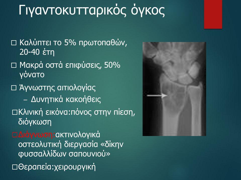 Γιγαντοκυτταρικός όγκος  Καλύπτει το 5% πρωτοπαθών, 20-40 έτη  Μακρά οστά επιφύσεις, 50% γόνατο  Άγνωστης αιτιολογίας – Δυνητικά κακοήθεις  Κλινικ
