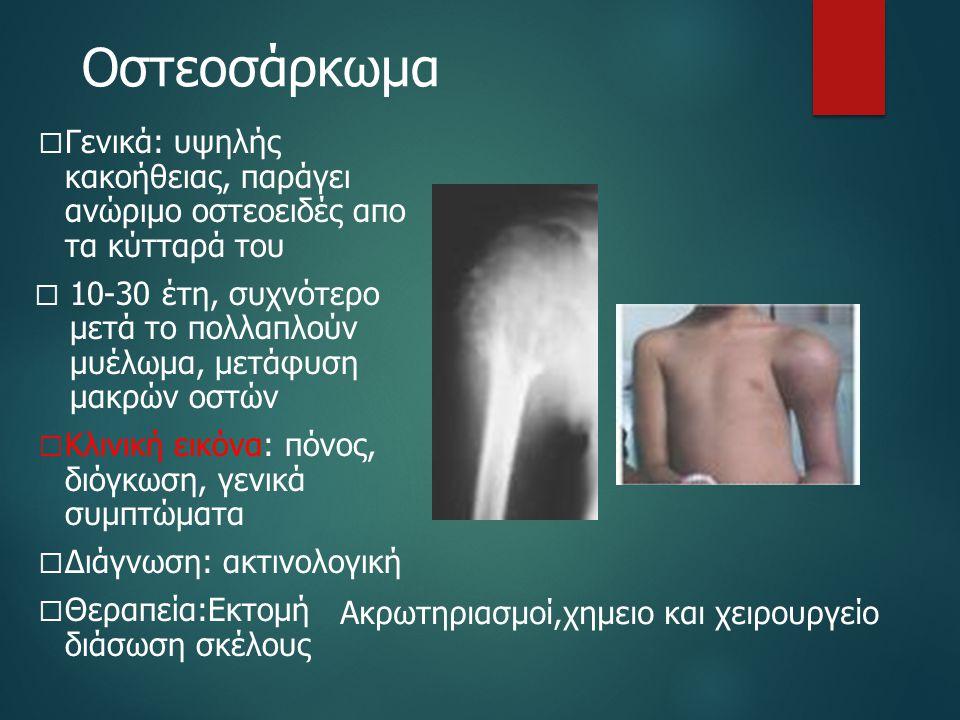 Οστεοσάρκωμα  Γενικά: υψηλής κακοήθειας, παράγει ανώριμο οστεοειδές απο τα κύτταρά του  10-30 έτη, συχνότερο μετά το πολλαπλούν μυέλωμα, μετάφυση μα