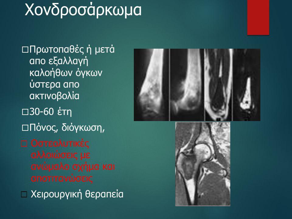 Χονδροσάρκωμα  Πρωτοπαθές ή μετά απο εξαλλαγή καλοήθων όγκων ύστερα απο ακτινοβολία  30-60 έτη  Πόνος, διόγκωση,  Οστεολυτικές αλλοιώσεις με ανώμα