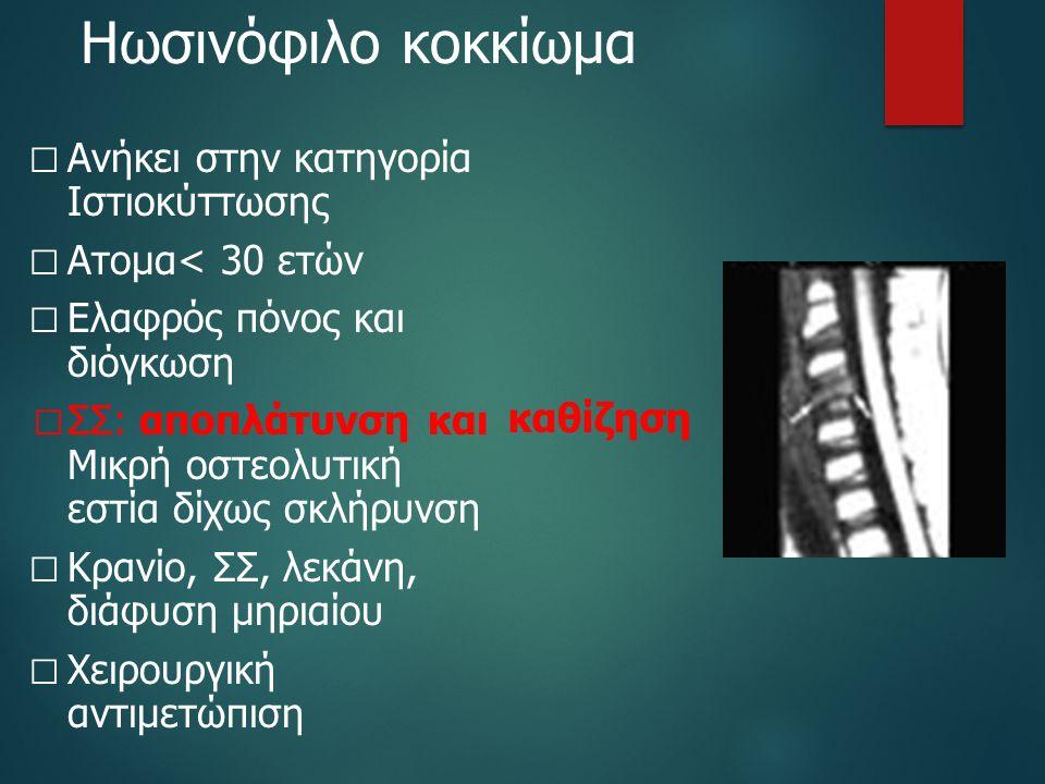 Ηωσινόφιλο κοκκίωμα  Ανήκει στην κατηγορία Ιστιοκύττωσης  Ατομα< 30 ετών  Ελαφρός πόνος και διόγκωση  ΣΣ: αποπλάτυνση και Μικρή οστεολυτική εστία