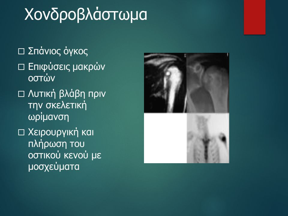 Χονδροβλάστωμα  Σπάνιος όγκος  Επιφύσεις μακρών οστών  Λυτική βλάβη πριν την σκελετική ωρίμανση  Χειρουργική και πλήρωση του οστικού κενού με μοσχ
