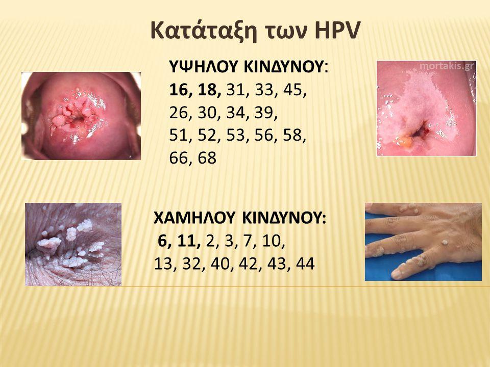 Κατάταξη των HPV ΥΨΗΛΟΥ ΚΙΝΔΥΝΟΥ : 16, 18, 31, 33, 45, 26, 30, 34, 39, 51, 52, 53, 56, 58, 66, 68 ΧΑΜΗΛΟΥ ΚΙΝΔΥΝΟΥ: 6, 11, 2, 3, 7, 10, 13, 32, 40, 42