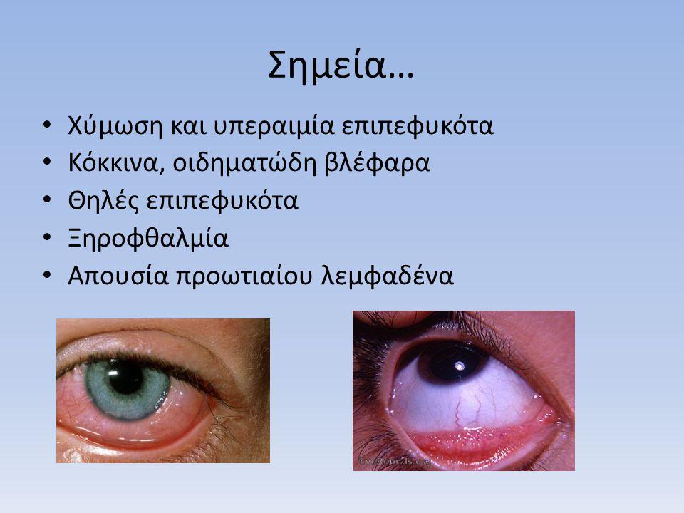 Σημεία… Χύμωση και υπεραιμία επιπεφυκότα Κόκκινα, οιδηματώδη βλέφαρα Θηλές επιπεφυκότα Ξηροφθαλμία Απουσία προωτιαίου λεμφαδένα