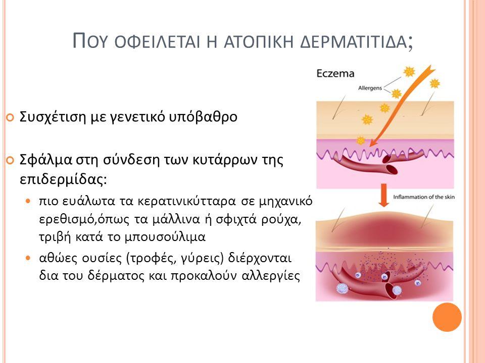 Π ΟΥ ΟΦΕΙΛΕΤΑΙ Η ΑΤΟΠΙΚΗ ΔΕΡΜΑΤΙΤΙΔΑ ; Συσχέτιση με γενετικό υπόβαθρο Σφάλμα στη σύνδεση των κυτάρρων της επιδερμίδας: πιο ευάλωτα τα κερατινικύτταρα