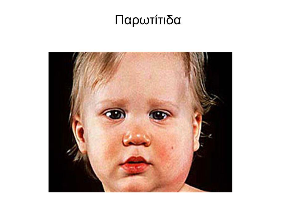 Παρωτίτιδα