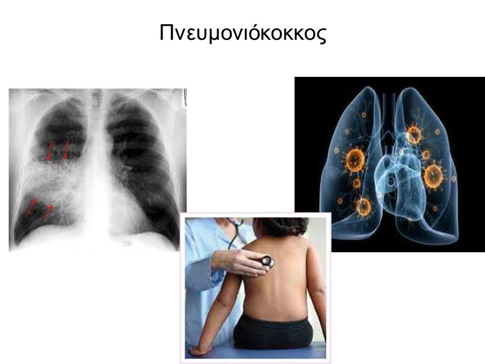 Πνευμονιόκοκκος