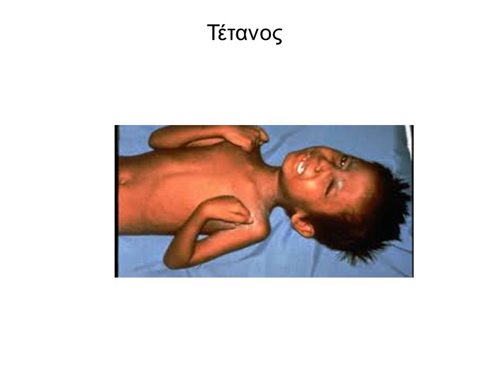 Πολιομυελίτιδα