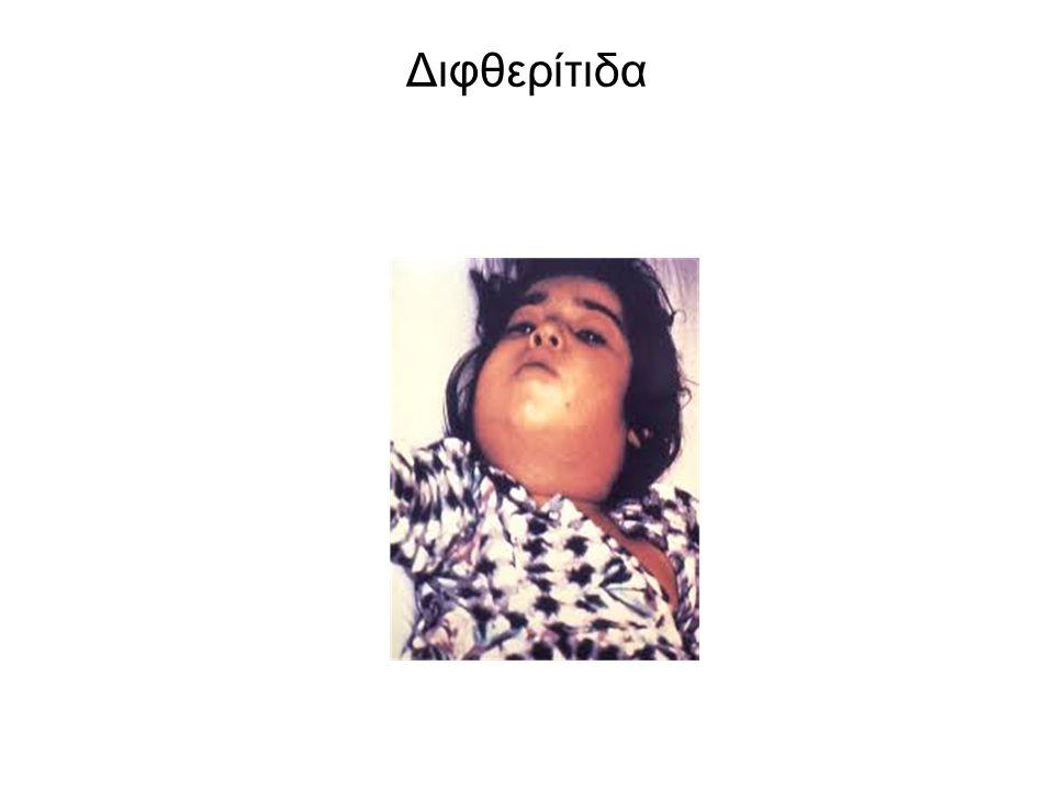 Διφθερίτιδα