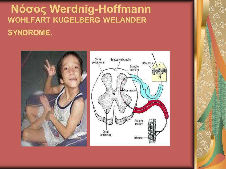 Νόσος Werdnig-Hoffmann WOHLFART KUGELBERG WELANDER SYNDROME.