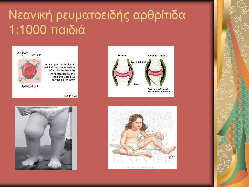 Νεανική ρευματοειδής αρθρίτιδα 1:1000 παιδιά