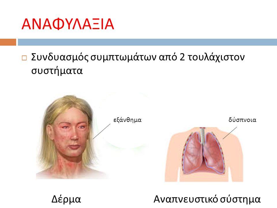ΑΝΑΦΥΛΑΞΙΑ - ΣΥΜΠΤΩΜΑΤΑ
