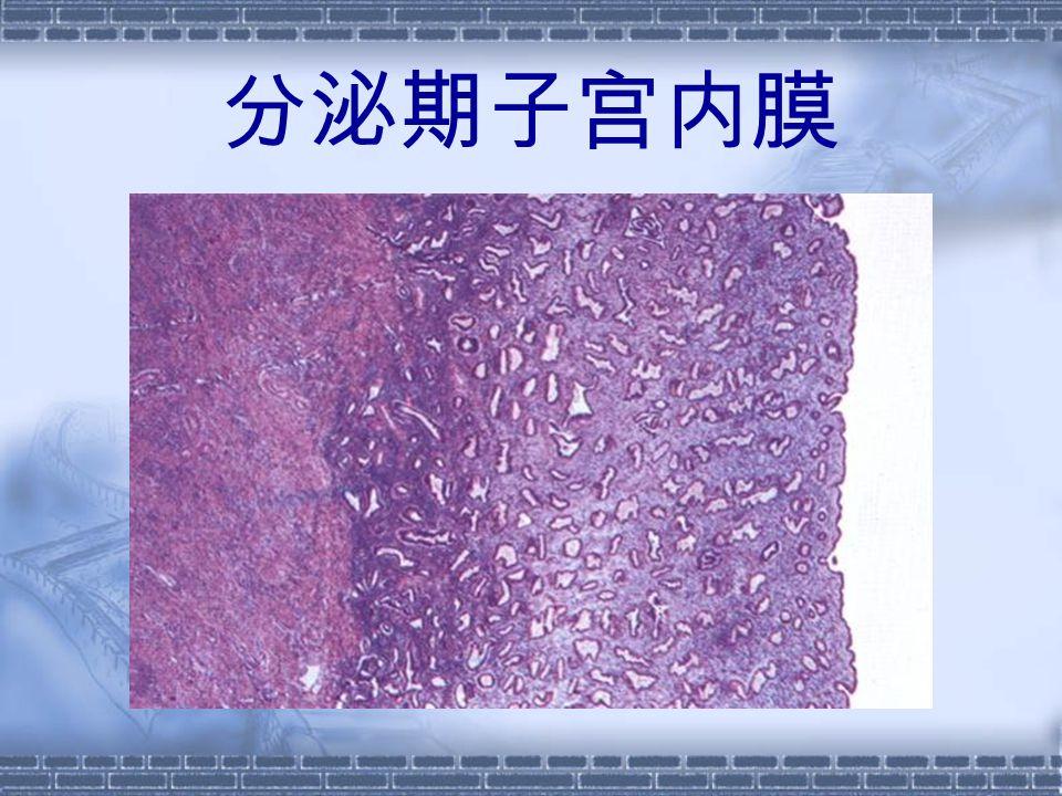 分泌期子宫内膜