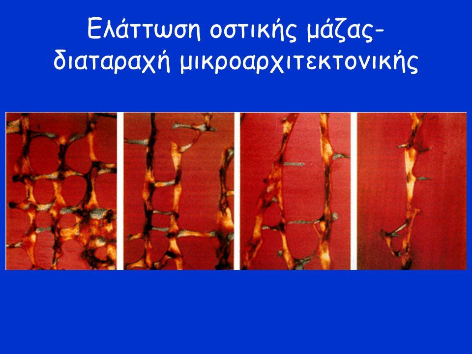 Ελάττωση οστικής μάζας- διαταραχή μικροαρχιτεκτονικής