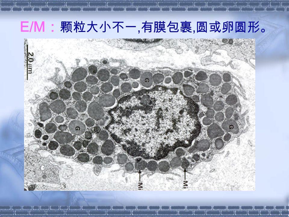 E/M : 颗粒大小不一, 有膜包裹, 圆或卵圆形。