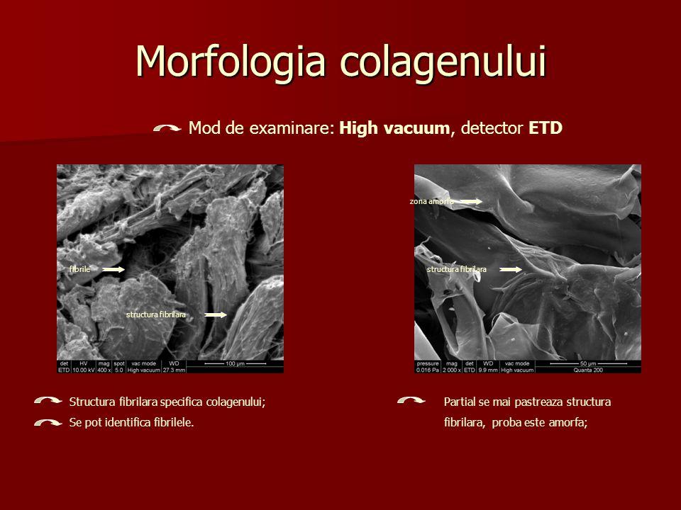 Morfologia colagenului Structura fibrilara specifica colagenului; Se pot identifica fibrilele. Partial se mai pastreaza structura fibrilara, proba est