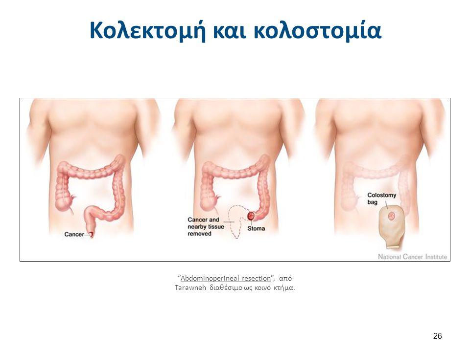 """Κολεκτομή και κολοστομία 26 """"Abdominoperineal resection"""", από Tarawneh διαθέσιμο ως κοινό κτήμα.Abdominoperineal resection"""