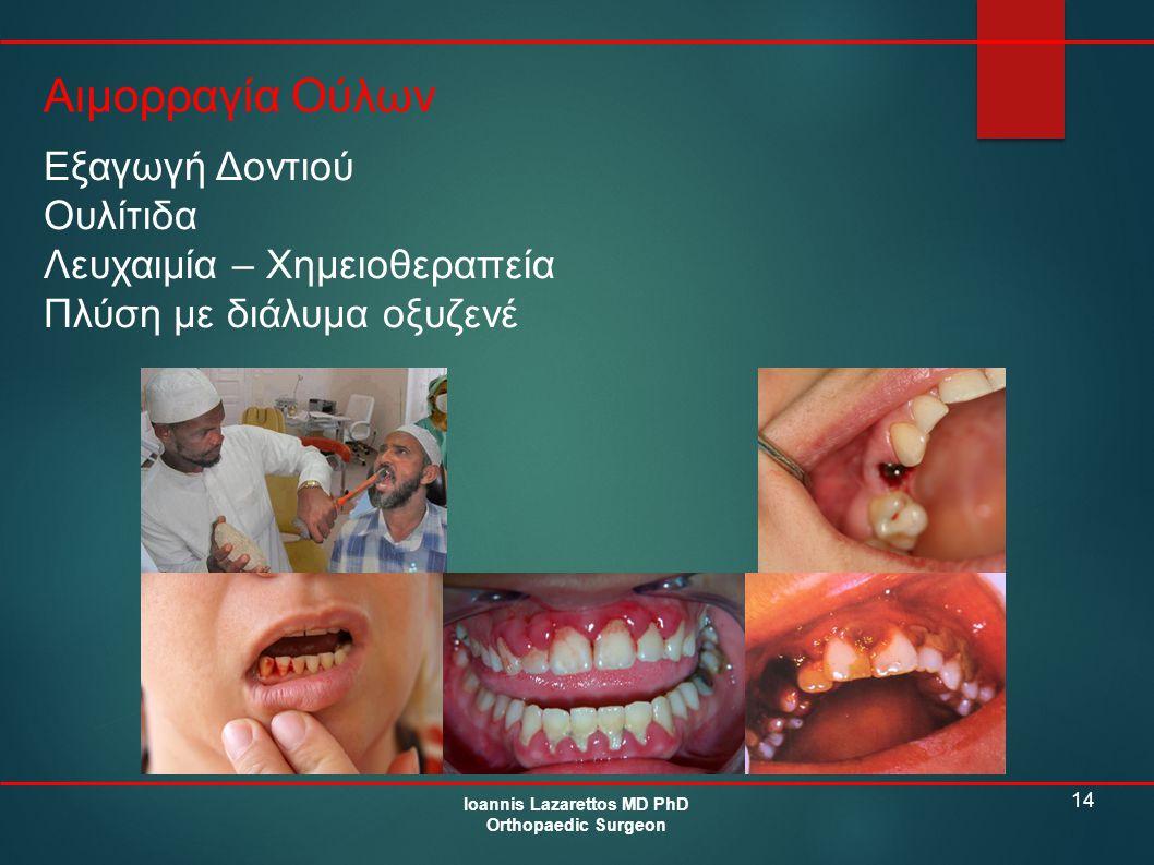 14 Αιμορραγία Ούλων Ioannis Lazarettos MD PhD Orthopaedic Surgeon Εξαγωγή Δοντιού Ουλίτιδα Λευχαιμία – Χημειοθεραπεία Πλύση με διάλυμα οξυζενέ