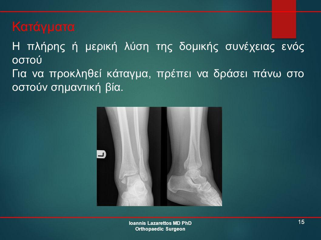 15 Κατάγματα Ioannis Lazarettos MD PhD Orthopaedic Surgeon Η πλήρης ή μερική λύση της δομικής συνέχειας ενός οστού Για να προκληθεί κάταγμα, πρέπει να