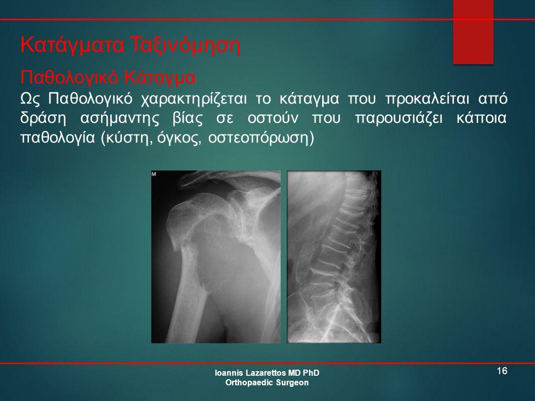 16 Κατάγματα Ταξινόμηση Ioannis Lazarettos MD PhD Orthopaedic Surgeon Παθολογικό Κάταγμα Ως Παθολογικό χαρακτηρίζεται το κάταγμα που προκαλείται από δ