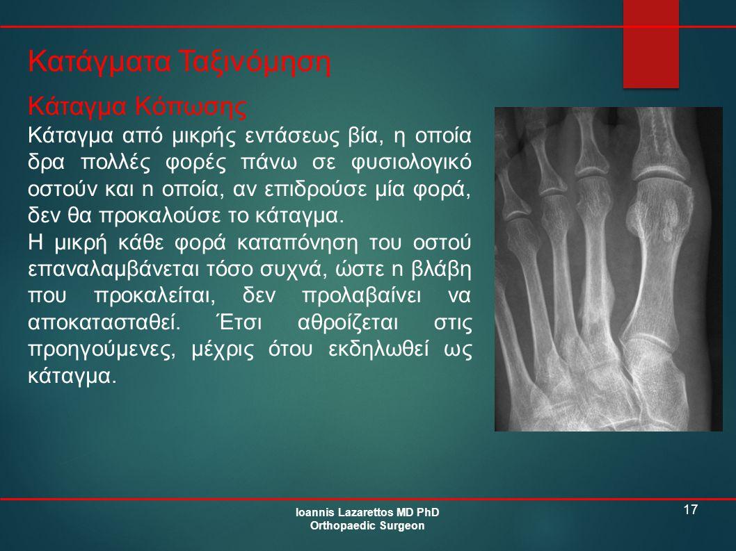 17 Κατάγματα Ταξινόμηση Ioannis Lazarettos MD PhD Orthopaedic Surgeon Κάταγμα Κόπωσης Κάταγμα από μικρής εντάσεως βία, η οποία δρα πολλές φορές πάνω σ