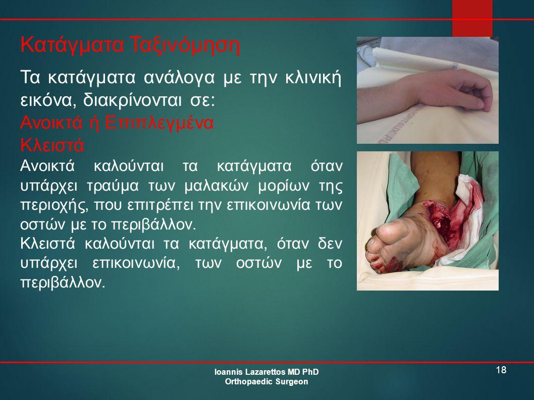18 Κατάγματα Ταξινόμηση Ioannis Lazarettos MD PhD Orthopaedic Surgeon Τα κατάγματα ανάλογα με την κλινική εικόνα, διακρίνονται σε: Ανοικτά ή Επιπλεγμέ