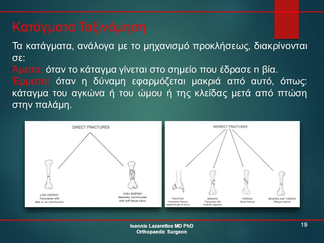19 Κατάγματα Ταξινόμηση Ioannis Lazarettos MD PhD Orthopaedic Surgeon Τα κατάγματα, ανάλογα με το μηχανισμό προκλήσεως, διακρίνονται σε: Άμεσα: όταν τ
