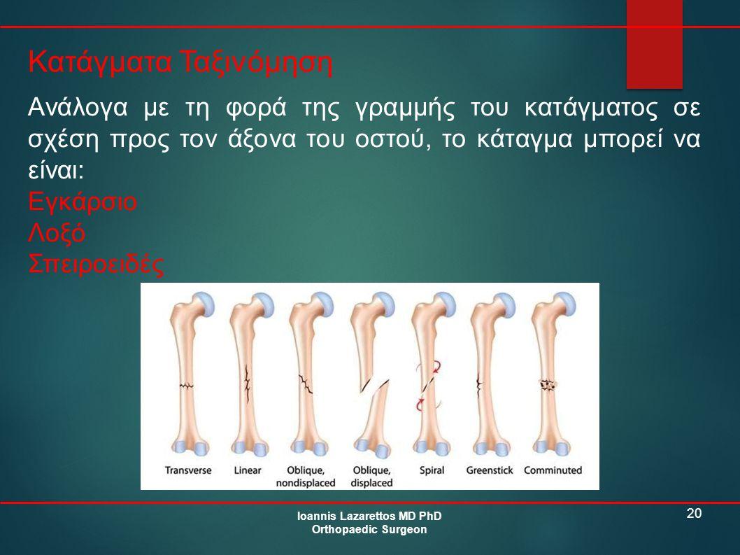 20 Κατάγματα Ταξινόμηση Ioannis Lazarettos MD PhD Orthopaedic Surgeon Ανάλογα με τη φορά της γραμμής του κατάγματος σε σχέση προς τον άξονα του οστού,