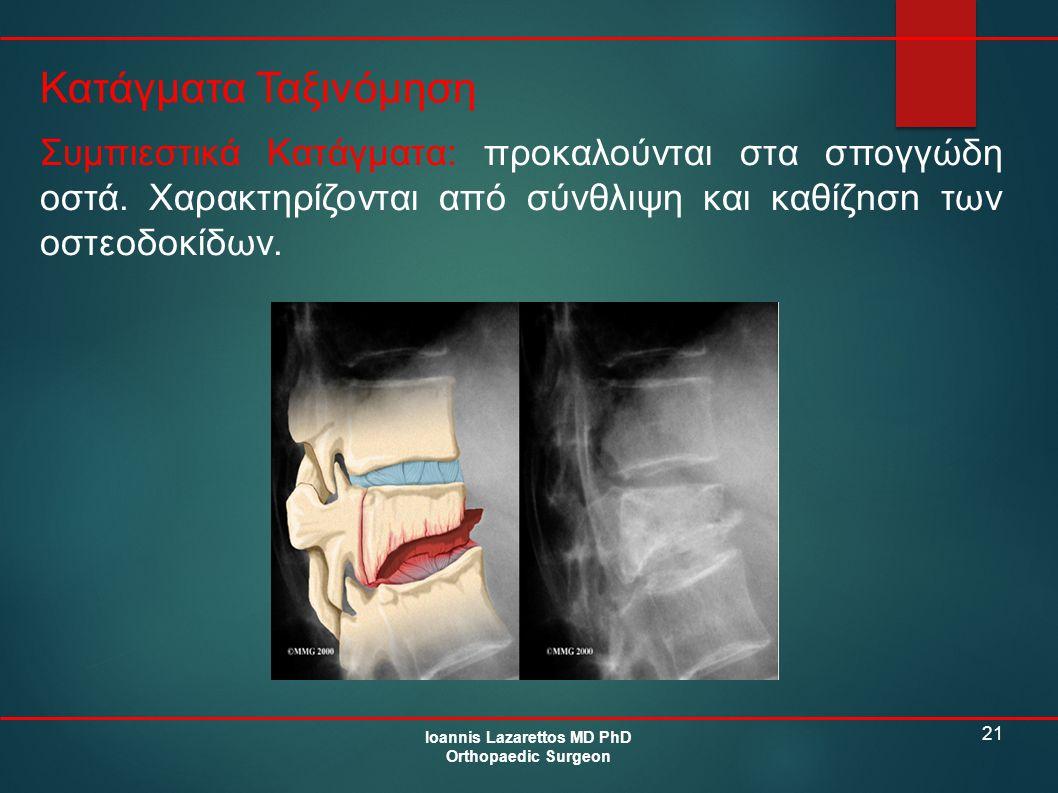 21 Κατάγματα Ταξινόμηση Ioannis Lazarettos MD PhD Orthopaedic Surgeon Συμπιεστικά Κατάγματα: προκαλούνται στα σπογγώδη οστά. Χαρακτηρίζονται από σύνθλ