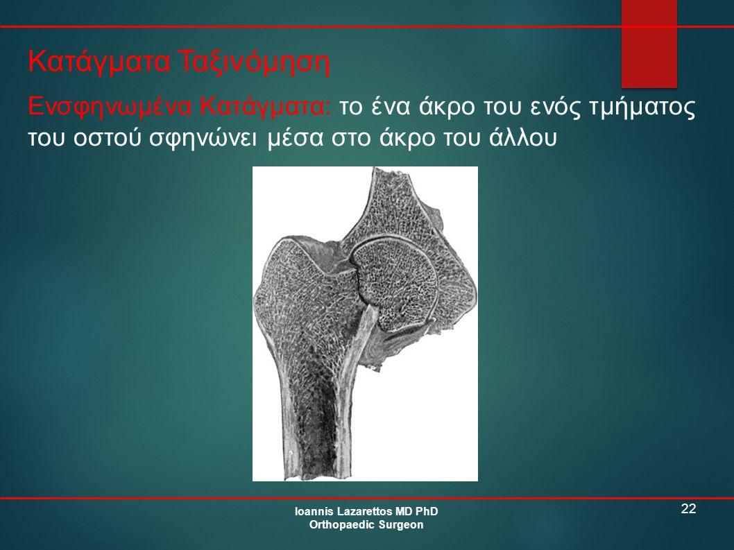 22 Κατάγματα Ταξινόμηση Ioannis Lazarettos MD PhD Orthopaedic Surgeon Ενσφηνωμένα Κατάγματα: το ένα άκρο του ενός τμήματος του οστού σφηνώνει μέσα στο