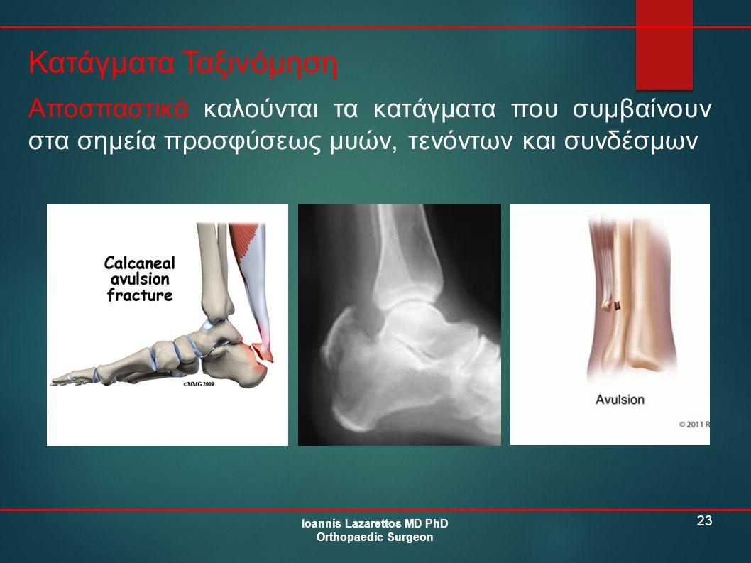 23 Κατάγματα Ταξινόμηση Ioannis Lazarettos MD PhD Orthopaedic Surgeon Αποσπαστικά καλούνται τα κατάγματα που συμβαίνουν στα σημεία προσφύσεως μυών, τε