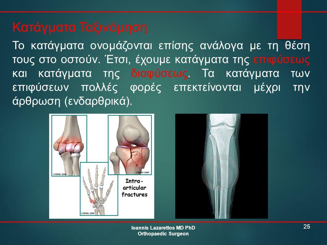 25 Κατάγματα Ταξινόμηση Ioannis Lazarettos MD PhD Orthopaedic Surgeon Το κατάγματα ονομάζονται επίσης ανάλογα με τη θέση τους στο οστούν. Έτσι, έχουμε