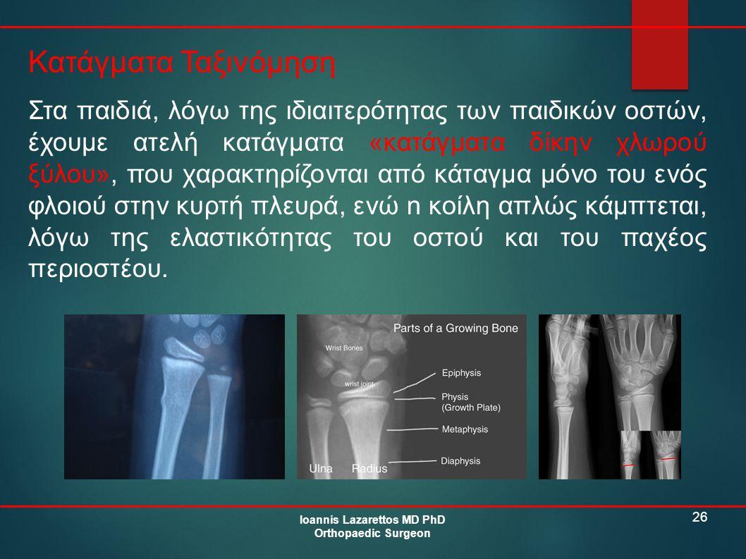 26 Κατάγματα Ταξινόμηση Ioannis Lazarettos MD PhD Orthopaedic Surgeon Στα παιδιά, λόγω της ιδιαιτερότητας των παιδικών οστών, έχουμε ατελή κατάγματα «