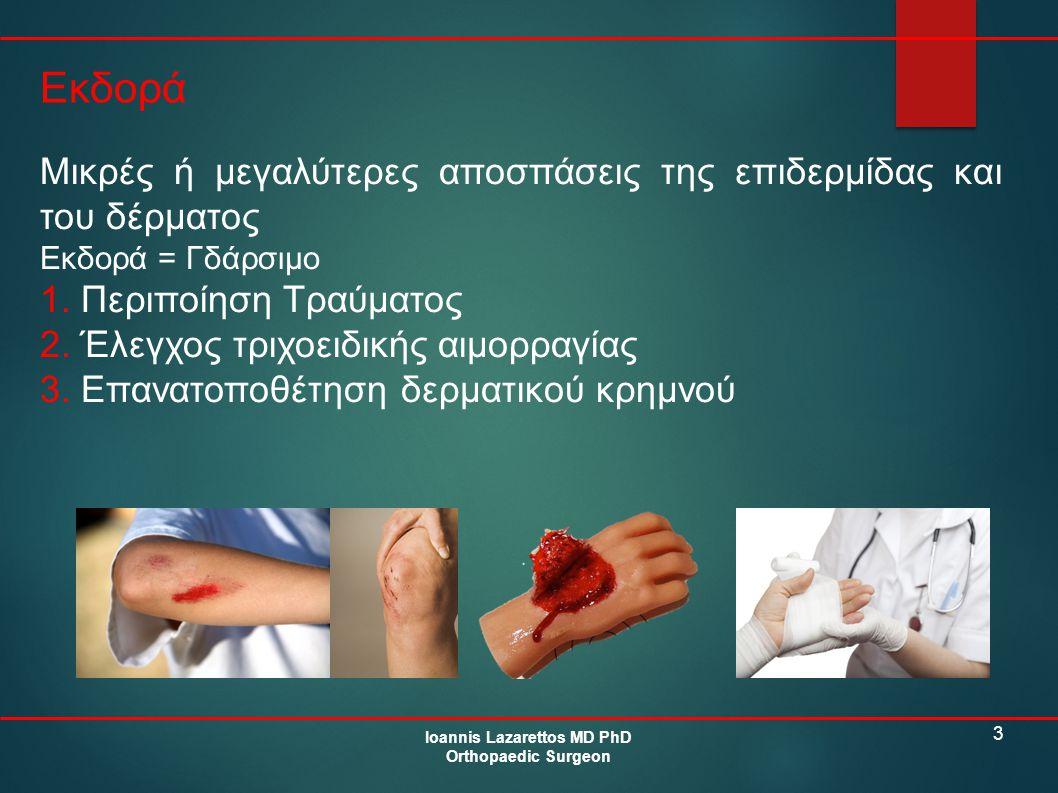 3 Εκδορά Ioannis Lazarettos MD PhD Orthopaedic Surgeon Μικρές ή μεγαλύτερες αποσπάσεις της επιδερμίδας και του δέρματος Εκδορά = Γδάρσιμο 1. Περιποίησ