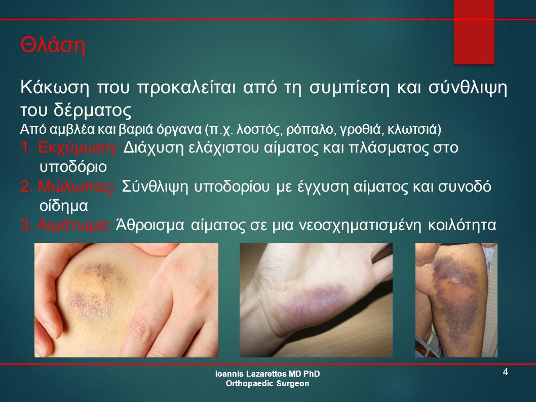 4 Θλάση Ioannis Lazarettos MD PhD Orthopaedic Surgeon Κάκωση που προκαλείται από τη συμπίεση και σύνθλιψη του δέρματος Από αμβλέα και βαριά όργανα (π.