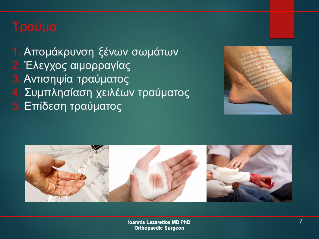 7 Τραύμα Ioannis Lazarettos MD PhD Orthopaedic Surgeon 1.