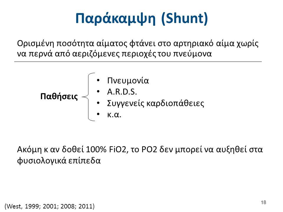 Παράκαμψη (Shunt) Ορισμένη ποσότητα αίματος φτάνει στο αρτηριακό αίμα χωρίς να περνά από αεριζόμενες περιοχές του πνεύμονα (West, 1999; 2001; 2008; 2011) 18 Παθήσεις Πνευμονία A.R.D.S.