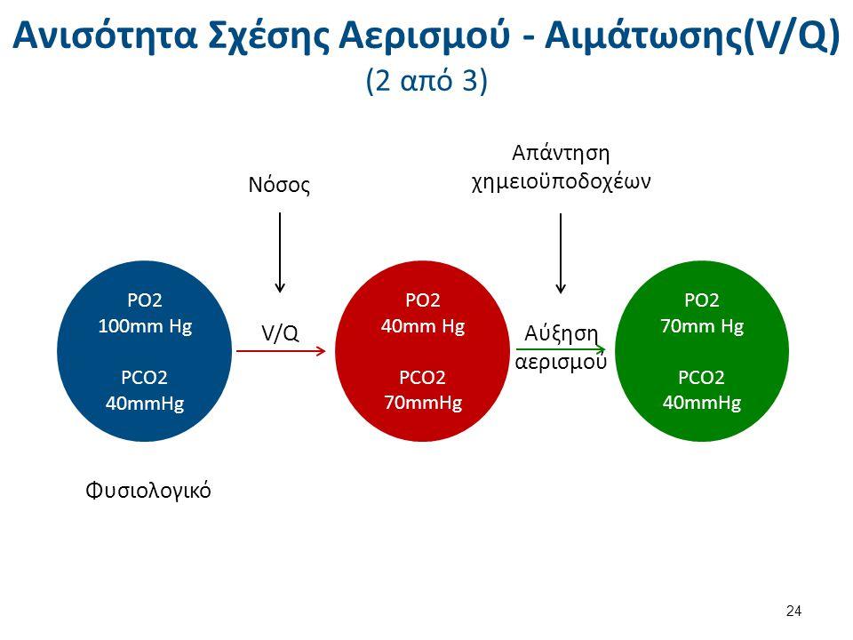 Ανισότητα Σχέσης Αερισμού - Αιμάτωσης(V/Q) (2 από 3) 24 PO2 100mm Hg PCO2 40mmHg PO2 40mm Hg PCO2 70mmHg PO2 70mm Hg PCO2 40mmHg Φυσιολογικό Νόσος V/Q Απάντηση χημειοϋποδοχέων Αύξηση αερισμού