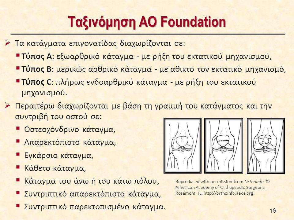 19 Ταξινόμηση AO Foundation  Τα κατάγματα επιγονατίδας διαχωρίζονται σε:  Τύπος A: εξωαρθρικό κάταγμα - με ρήξη του εκτατικού μηχανισμού,  Τύπος B: