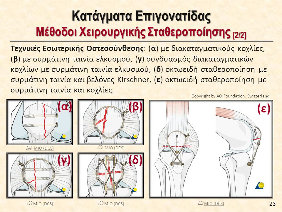 23 Κατάγματα Επιγονατίδας Μέθοδοι Χειρουργικής Σταθεροποίησης [2/2] Τεχνικές Εσωτερικής Οστεοσύνθεσης: (α) με διακαταγματικούς κοχλίες, (β) με συρμάτι