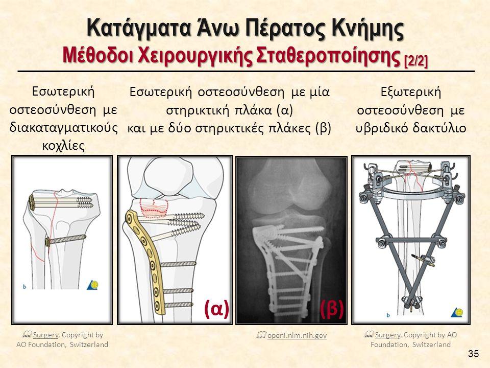 35 Κατάγματα Άνω Πέρατος Κνήμης Μέθοδοι Χειρουργικής Σταθεροποίησης [2/2] Εσωτερική οστεοσύνθεση με διακαταγματικούς κοχλίες Εξωτερική οστεοσύνθεση με