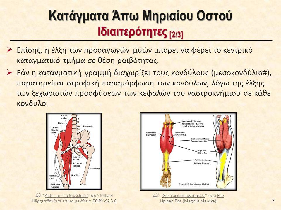  Επίσης, η έλξη των προσαγωγών μυών μπορεί να φέρει το κεντρικό καταγματικό τμήμα σε θέση ραιβότητας.  Εάν η καταγματική γραμμή διαχωρίζει τους κονδ