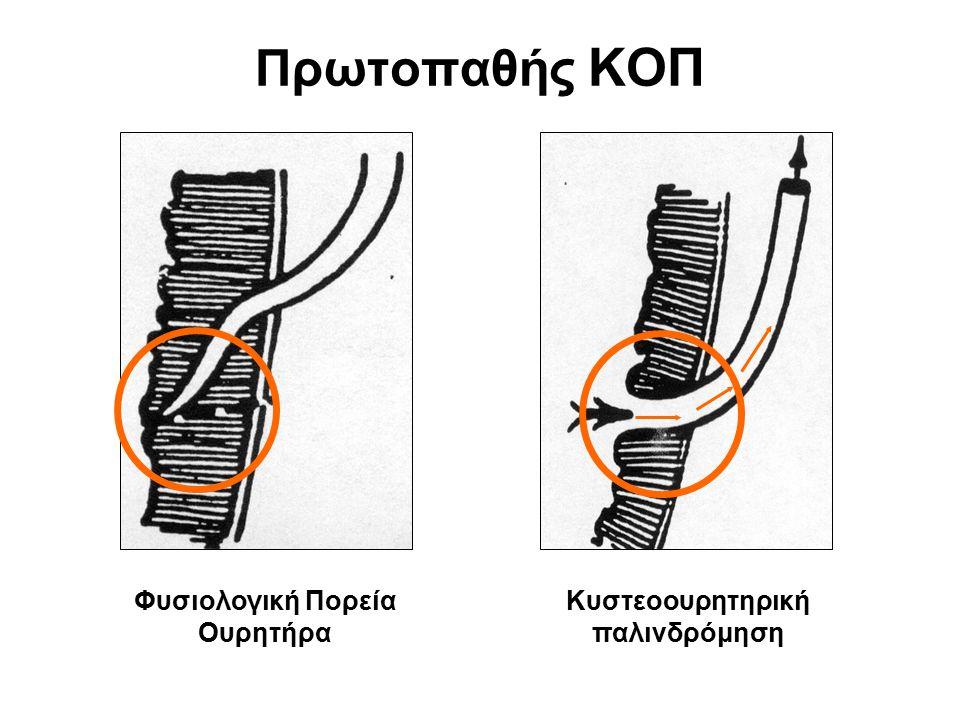 Πρωτοπαθής ΚΟΠ Φυσιολογική Πορεία Ουρητήρα Κυστεοουρητηρική παλινδρόμηση