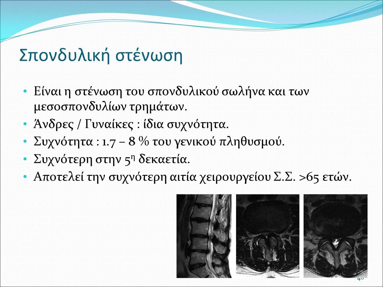 Σπονδυλική στένωση Είναι η στένωση του σπονδυλικού σωλήνα και των μεσοσπονδυλίων τρημάτων. Άνδρες / Γυναίκες : ίδια συχνότητα. Συχνότητα : 1.7 – 8 % τ