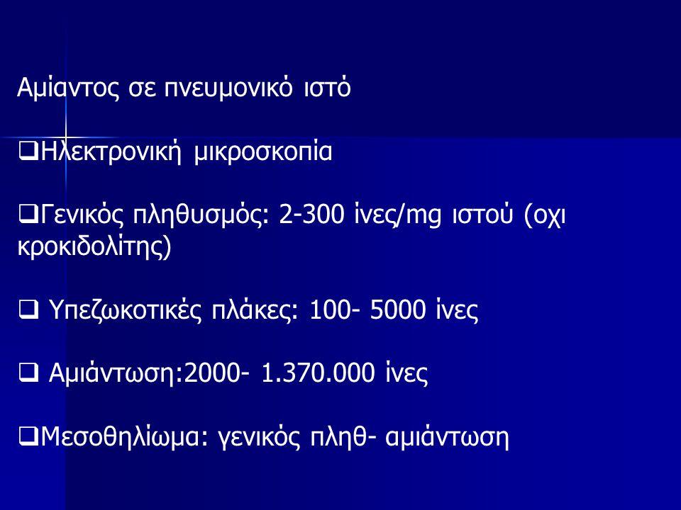 Αμίαντος σε πνευμονικό ιστό  Ηλεκτρονική μικροσκοπία  Γενικός πληθυσμός: 2-300 ίνες/mg ιστού (οχι κροκιδολίτης)  Υπεζωκοτικές πλάκες: 100- 5000 ίνες  Αμιάντωση:2000- 1.370.000 ίνες  Μεσοθηλίωμα: γενικός πληθ- αμιάντωση