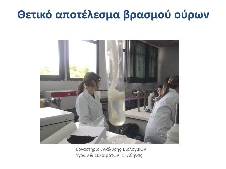 Θετικό αποτέλεσμα βρασμού ούρων Εργαστήριο Ανάλυσης Βιολογικών Υγρών & Εκκριμάτων ΤΕΙ Αθήνας