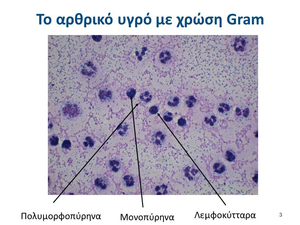 Κρύσταλλοι αρθρικού υγρού (1 από 2) Φυσιολογικά στο αρθρικό υγρό δεν υπάρχουν κρύσταλλοι.