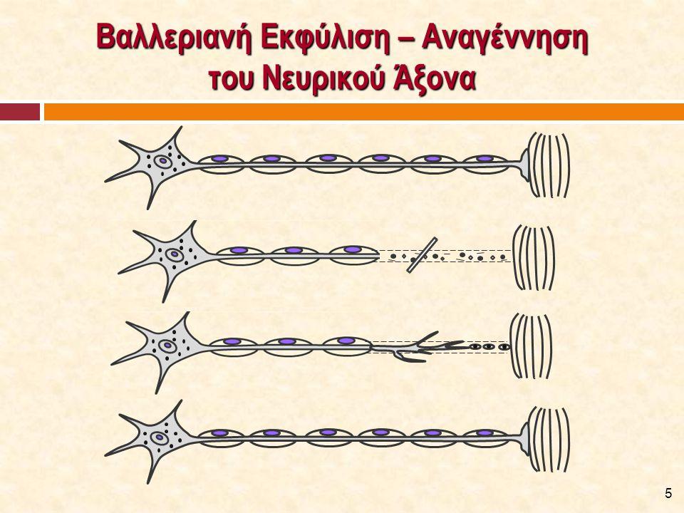 Εκφυλιστική Βλάβη του Νευρικού Άξονα [1/2]  Εκφύλιση του άξονα παρατηρείται και σε χρόνιες παθήσεις των περιφερικών νεύρων.
