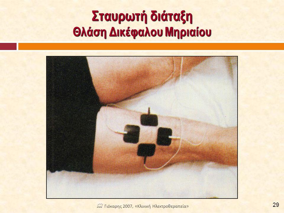 Σταυρωτή διάταξη Θλάση Δικέφαλου Μηριαίου 29  Γιόκαρης 2007, «Κλινική Ηλεκτροθεραπεία»