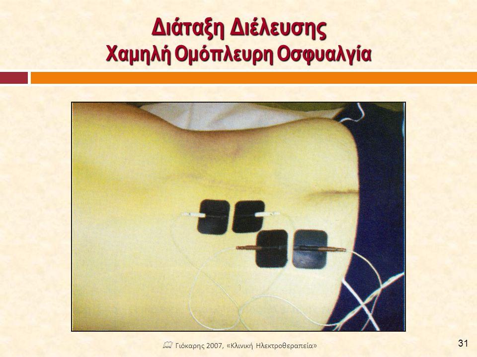 Διάταξη Διέλευσης Χαμηλή Ομόπλευρη Οσφυαλγία 31  Γιόκαρης 2007, «Κλινική Ηλεκτροθεραπεία»
