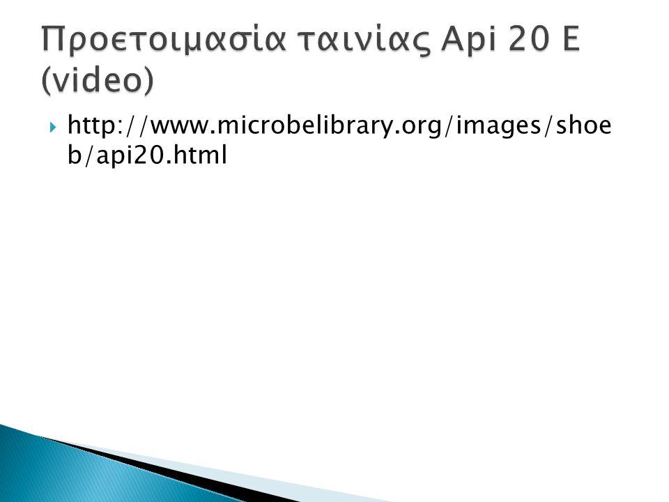  http://www.microbelibrary.org/images/shoe b/api20.html